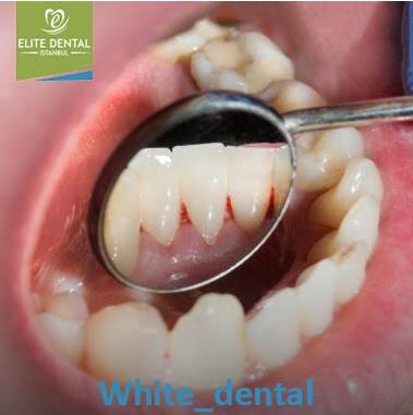 Dental care better smile 186694098.png